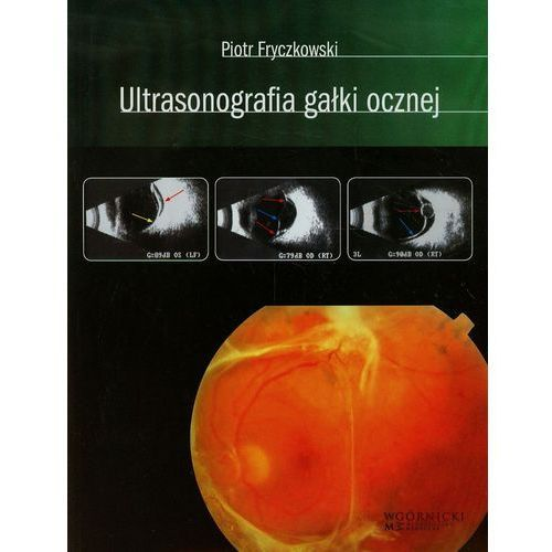 Książki medyczne, Ultrasonografia gałki ocznej (opr. twarda)